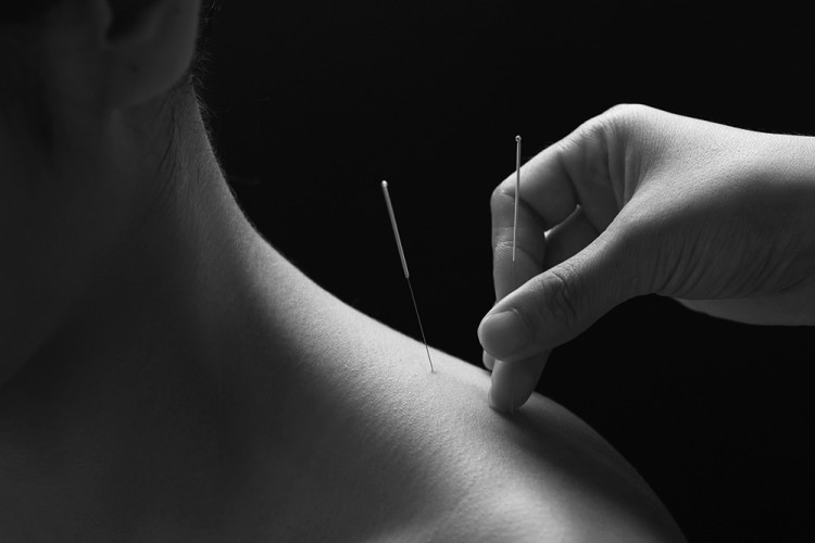 Acupuncture Brisbane