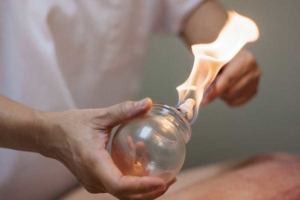 cupping treatments in camp hill
